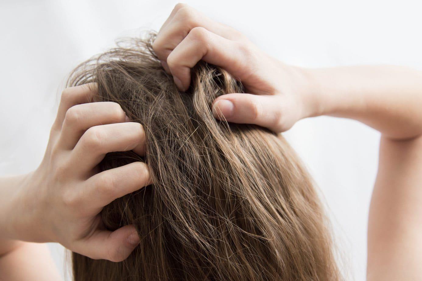 Swędząca skóra głowy – co może być przyczyną i jak walczyć z tym problemem?