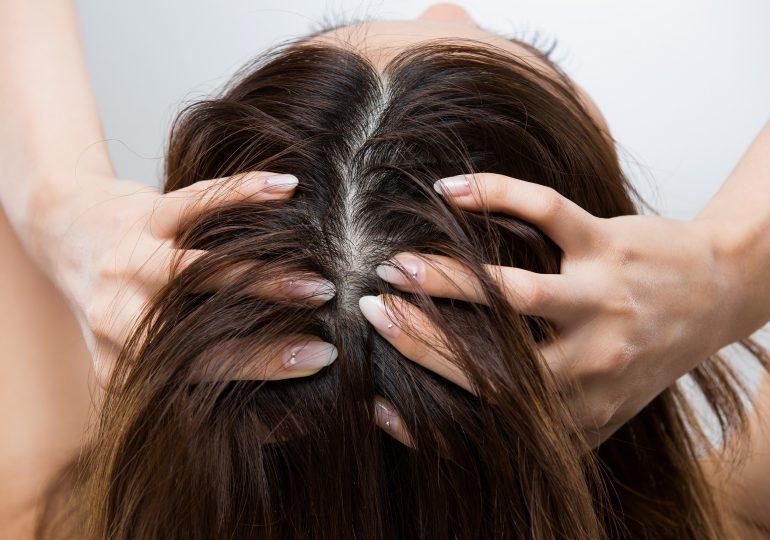 Co skóra głowy mówi o naszym zdrowiu?
