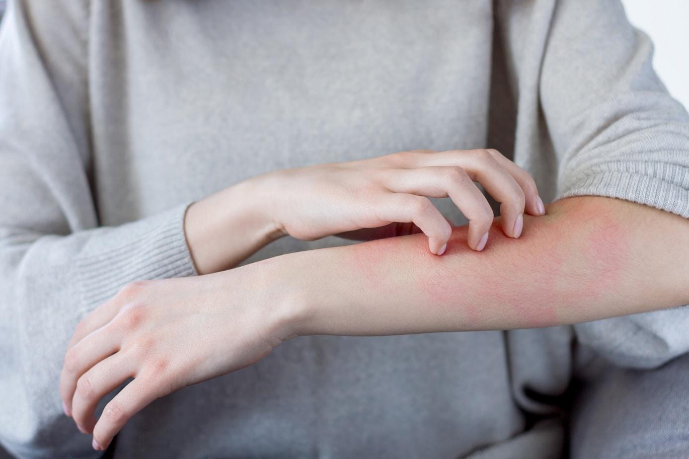 Łuszczyca to choroba, która przestaje być tematem tabu. Poznaj jej przyczyny, objawy i sposoby leczenia